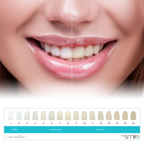 Eco Masters MySmile Teeth Whitening Kit
